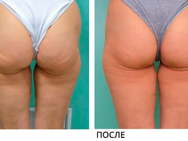 Lumenis NuEra Tight Результат До и После 1