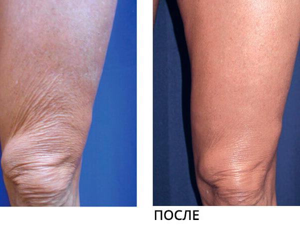 Lumenis NuEra Tight Результат До и После 2