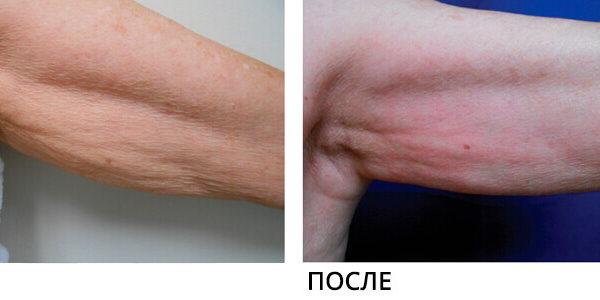 Lumenis NuEra Tight Результат До и После 4