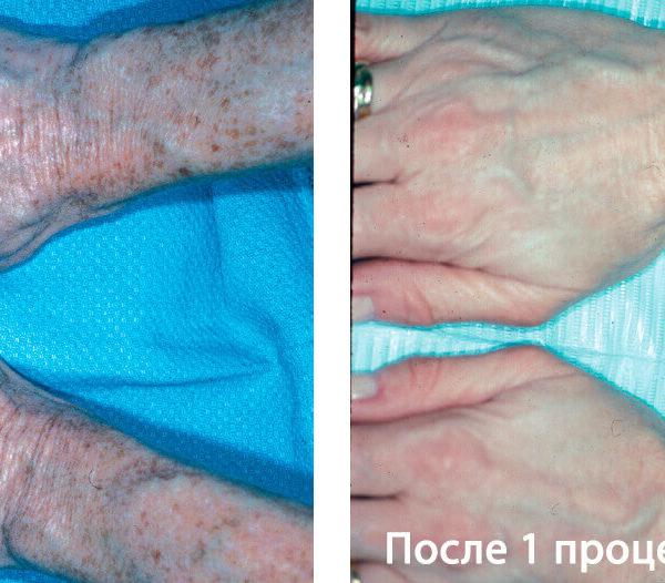 Lumenis PiQo4 Фото До и После 2
